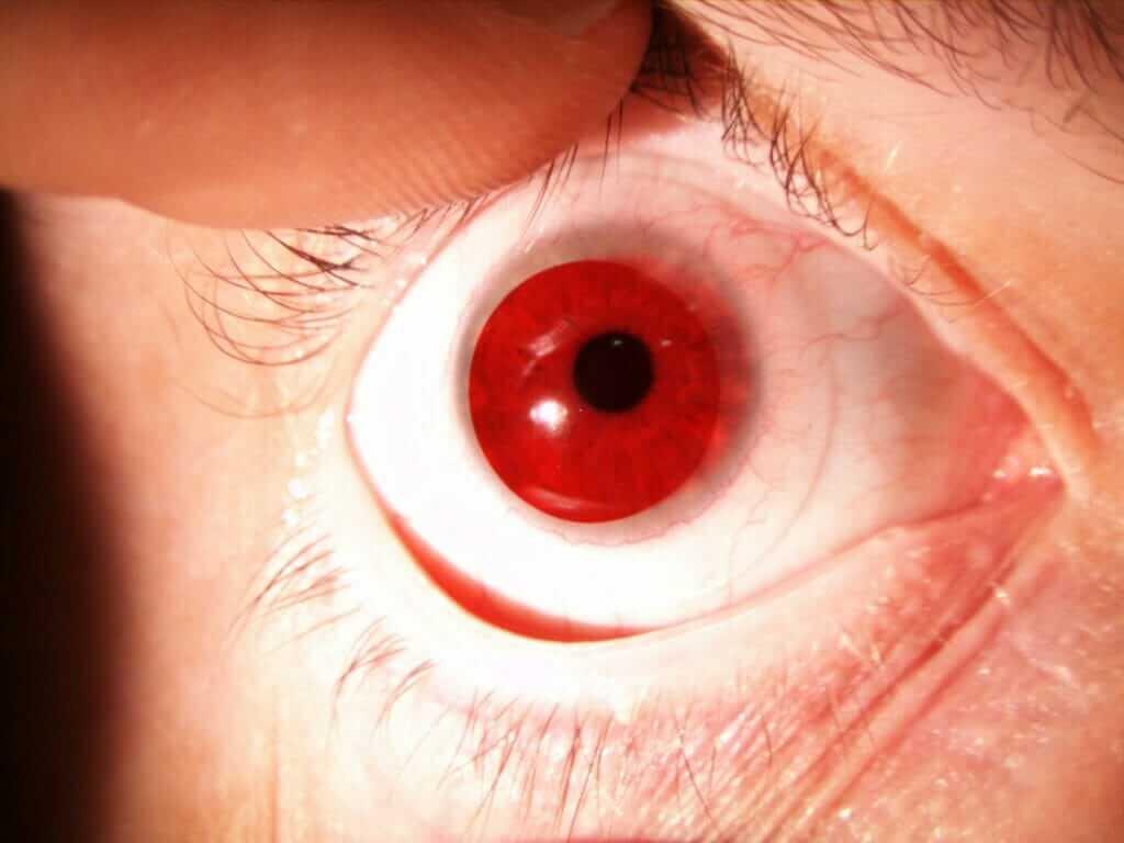 Achromatopsia lenses