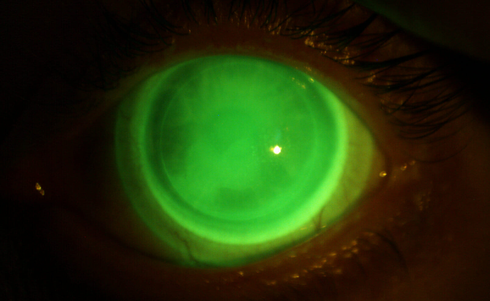 Contact Lenses Post LASIK Complication