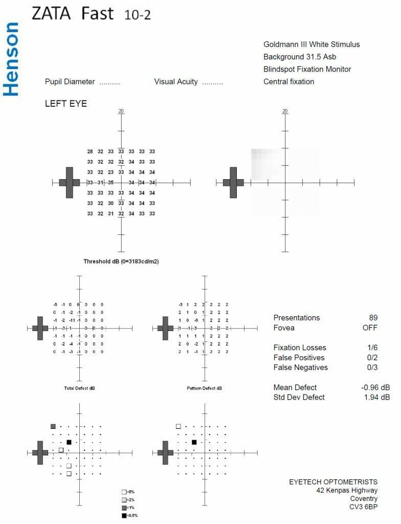 visual fields test